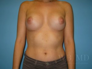 Patient 52a After Breast Augmentation