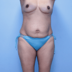 Patient 34a Before Mommy Makeover