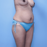 Patient 34b Before Mommy Makeover