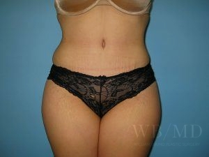 Patient 22a After Tummy Tuck