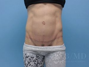 1 - After Tummy Tuck photo