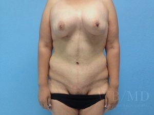 after tummy tuck image