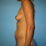 Patient 17c Before Mommy Makeover