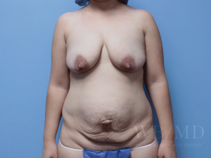 Patient 19a Before Mommy Makeover