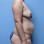 Patient 19e Before Mommy Makeover