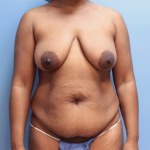 Patient 20a Before Mommy Makeover