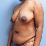 Patient 20b Before Mommy Makeover