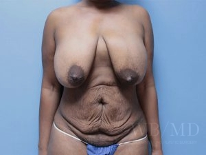 Patient 22a Before Mommy Makeover