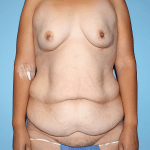 before tummy tuck image