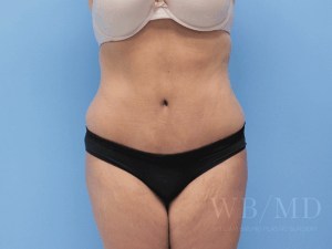 34 - after tummy tuck image