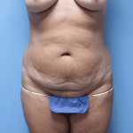 35 - before tummy tuck image