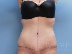 36 - after tummy tuck image