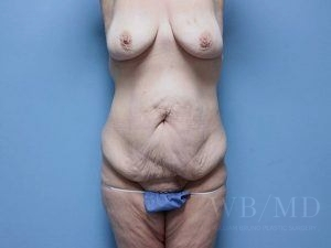36 - before tummy tuck image