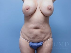 37 - before tummy tuck image