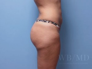 after brazilian buttlift 34.5