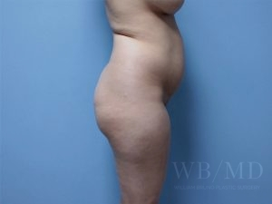before brazilian buttlift 35.5