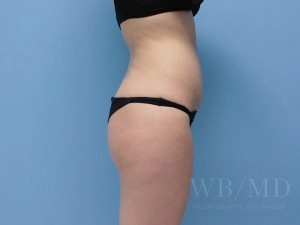 after brazilian buttlift 36.5