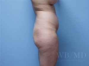 before brazilian buttlift 36.5