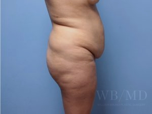 before brazilian buttlift 38.5