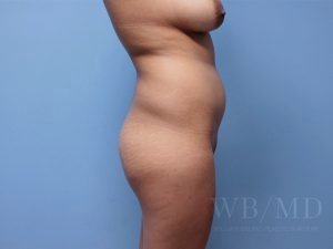 before brazilian buttlift 39.5