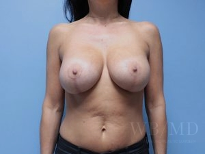 Patient 9a After Breast Lift With Augmentation