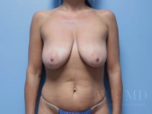 Patient 9a Before Breast Lift With Augmentation