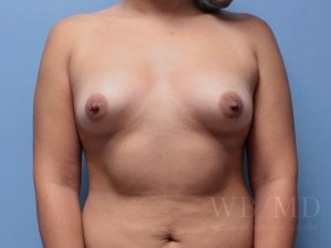 68a - Before Breast Augmentation