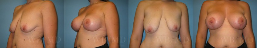 breast-lift-augmentation-beverly-hills