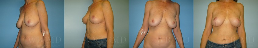 breast-lift-beverly-hills