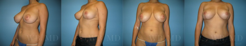 breast-reduction-beverly-hills