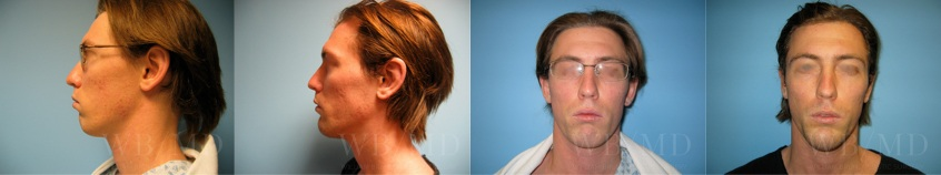 chin-implant-beverly-hills
