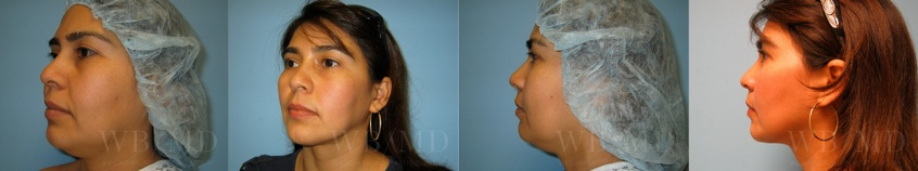 beverly hills chin liposuction beverly hills patient before and after photos
