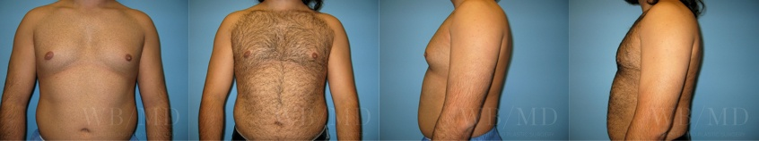 male-breast-reduction-beverly-hills
