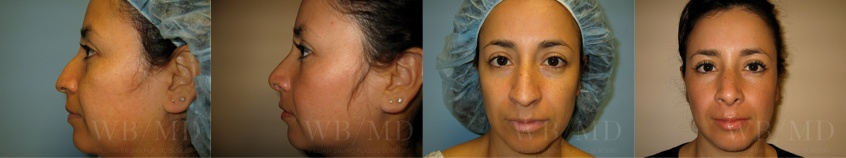 rhinoplasty-beverly-hills