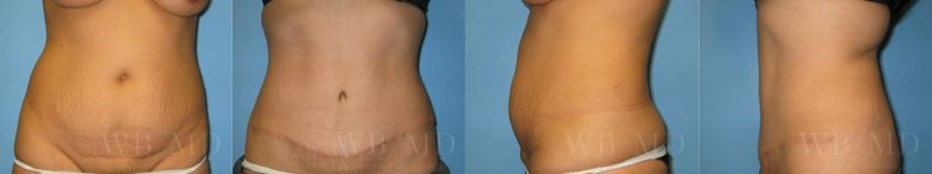tummy-tuck-beverly-hills