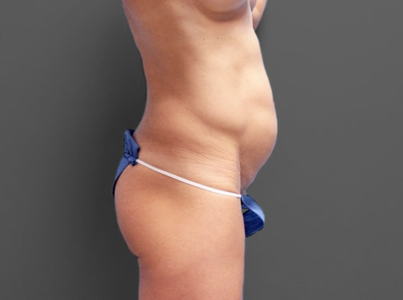 before tummy tuck photo