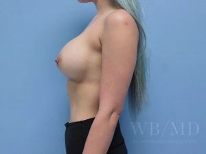 Patient 73a After Breast Augmentation