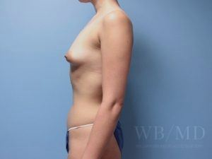 Patient 73a Before Breast Augmentation