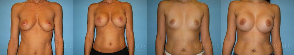 Images from Dr. Bruno's Breast Augmentation Gallery